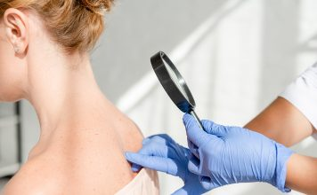 Dermatologist examining patient by mole mapping